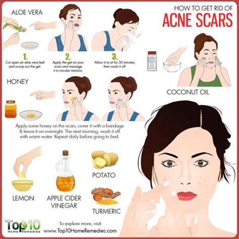 How To Get Rid Of Acne Scars how to get rid of acne scars top 10 home remedies