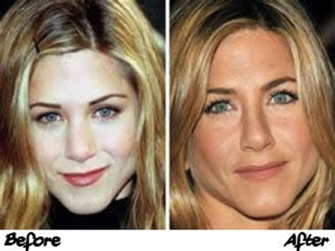 Did Aniston Get Implants by Aniston Plastic Surgery Breast Implants Before