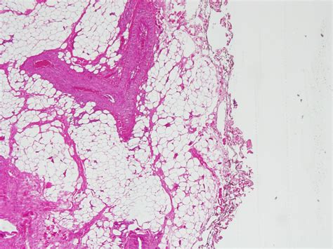 Hmb 45 Pathology Outlines by Anabible Dr Michels Pecome