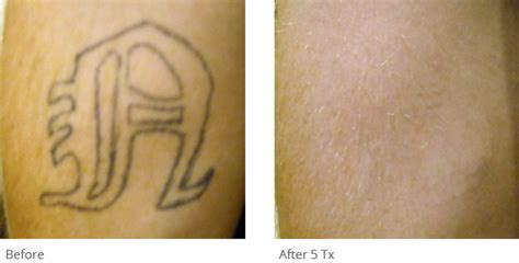 tattoo removal hamilton q switched nd yag removal laser astanza duality