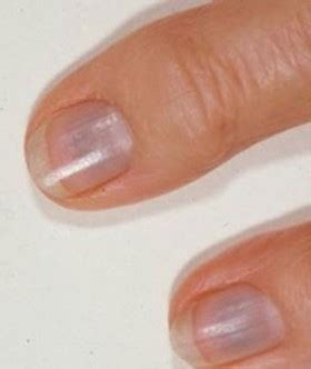 blue fingernail beds 21 finger abnormalities and what important things they