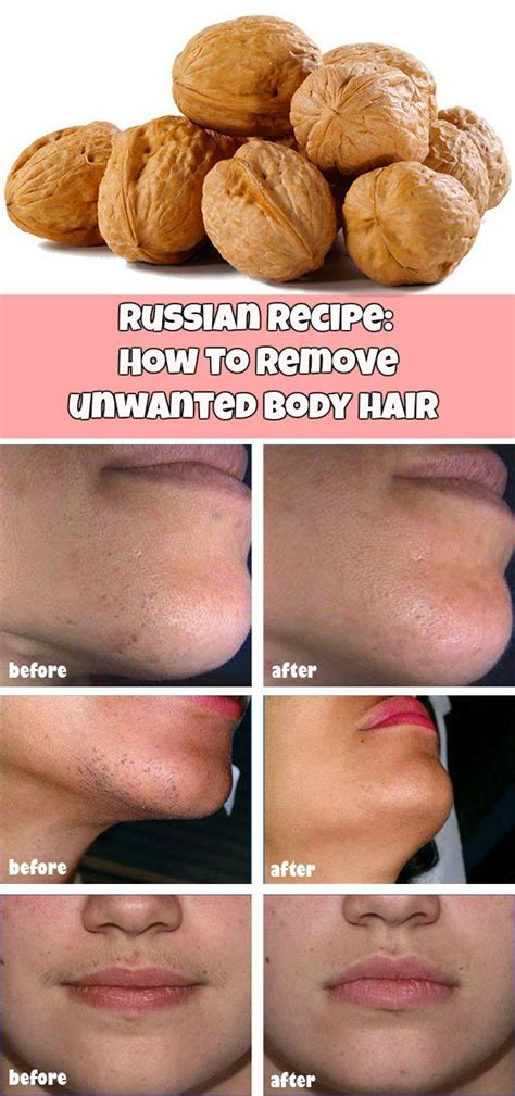 russian recipe how to remove hair