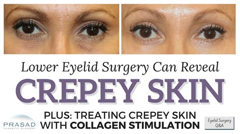 how eye bags can camouflage crepey lower eyelid skin and