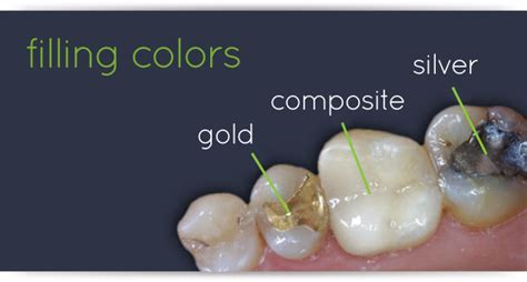 composite fillings   Oakville Dental Care