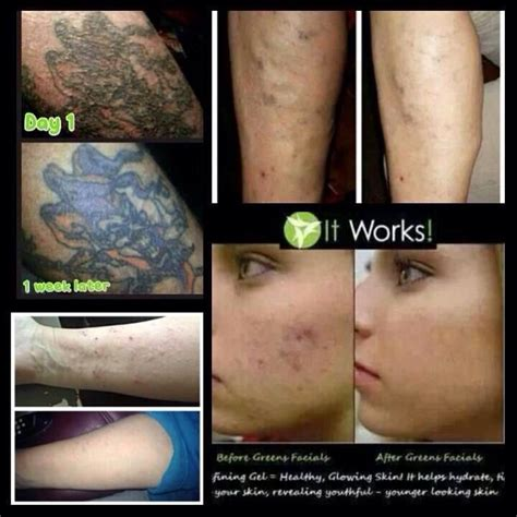 new tattoo zits varicose veins acne scars and a tattoo on pinterest