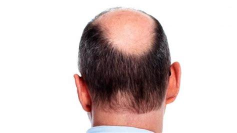 mengobati rambut rontok dan botak bagi pria bisa dilakukan dengan mengatasi kebotakan sabun amoorea