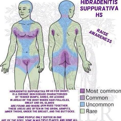 Will Detoxing Help With Hidradenitis by Areas Where Hidradenitis Suppurativa Can Show Up At