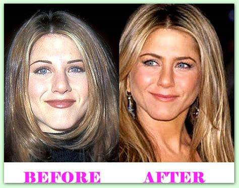 Aniston Second Nose For More Baby by Aniston Nose Plastic Surgery