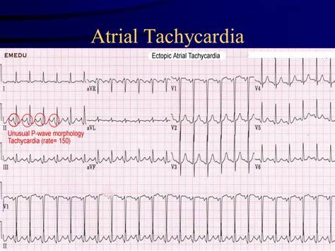 Atrial Tachycardia Images