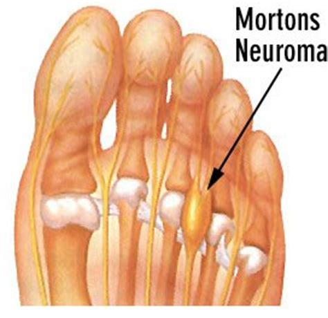 dolore al piede interno hai un dolore al piede le possibili cause e la soluzione