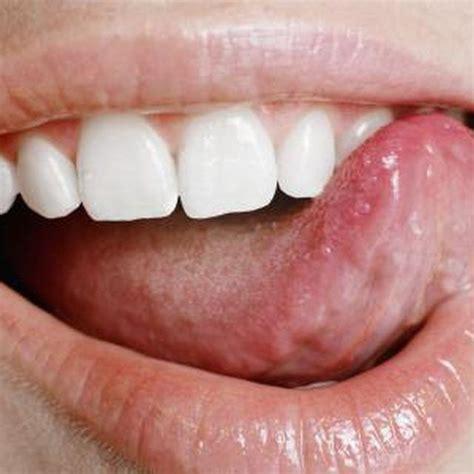 Panci Es Tung Tung 17 migliori idee su sore tongue su vitamine