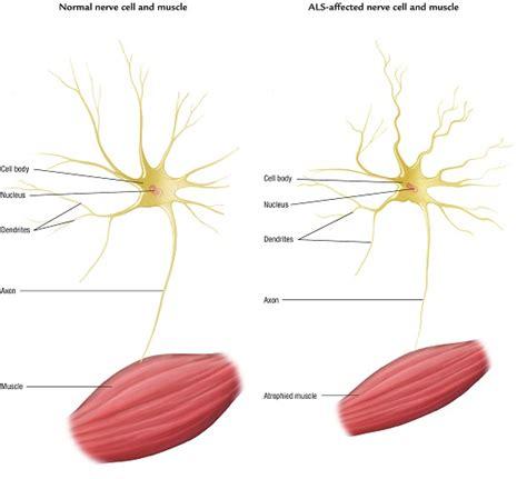als motor neuron neurology today