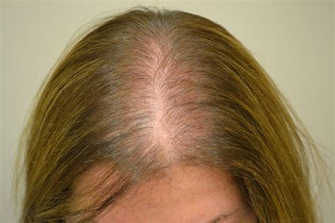 alopecia hair loss in women hair loss or alopecia factors treatments