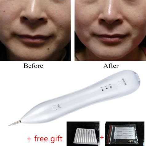 tattoo removal laser pen rechargeable warts removal machine laser freckle mole spot