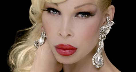 Chatter Busy: Amanda Lepore Plastic Surgery
