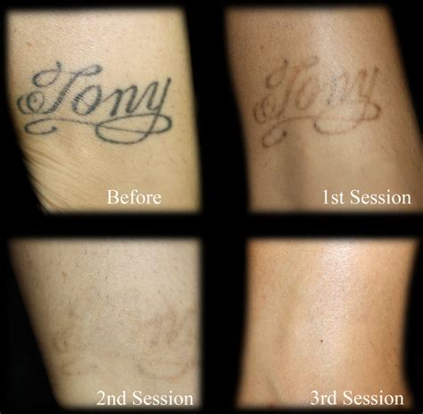 tattoo removal without laser untitled by tattoo removal