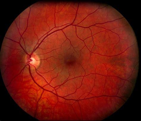 fundus eye photo north houston eye care age related macular degeneration