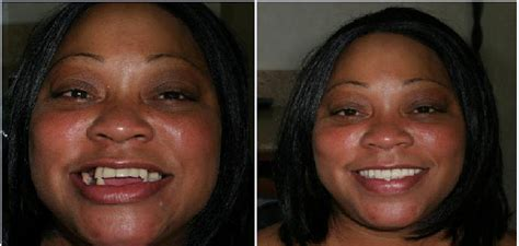 smile gallery  york city smile transformations