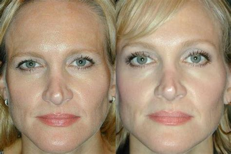 45 year old woman before and after surgery before after this 45 year old woman came in for botox
