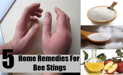 5 best home remedies for bee stings treatments