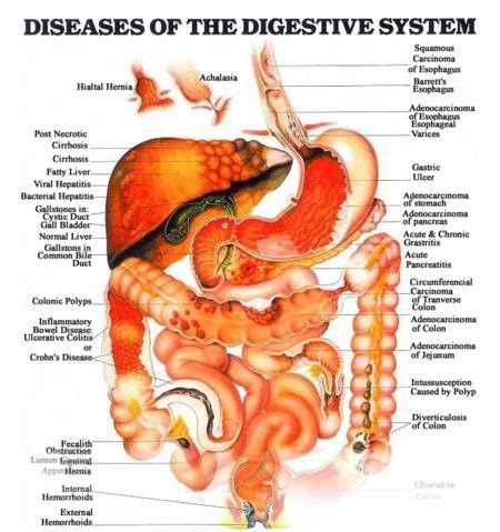 Detoxes For With Autoimmune Diseases diseases of the digestive system detoxing for health