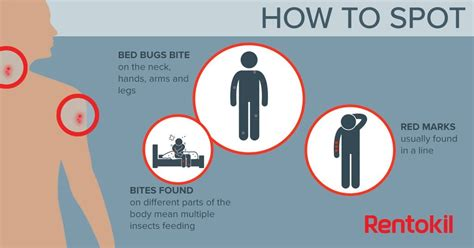 airbnb gave  bug bites