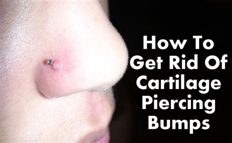 how to get rid of cartilage piercing bumps find home