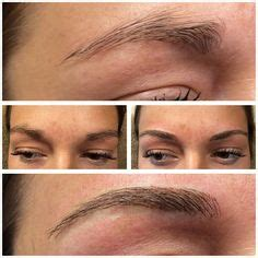 laser eyebrow tattoo removal before and after laser eyebrow removal before and after tattoos