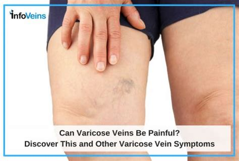 8 Symptoms Of Varicose Veins by Image Guided Surgery Aesthetics Vascular Care In Union