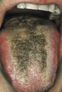 mycose buccale sympt 244 me de langue