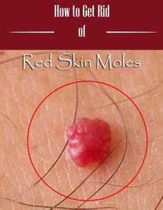 Cherry Angiomas Iodine And Bromide Detox by Mole Skin Moles And On