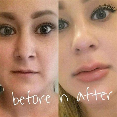 lip tattoo removal before and after picture of syringe of juvederm to the