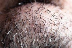 hair follicle chin the life cycle of a hair and electrolysis laser hair removal