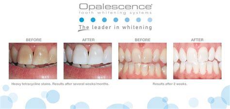 Opulence Teeth Whitening venus opalescence whitening capalbo dental
