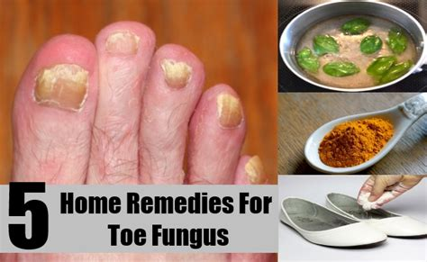 5 home remedies for toe fungus treatments cure