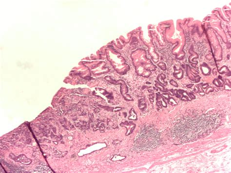 stomach tumor file gastric adenocarcinoma jpg wikimedia commons