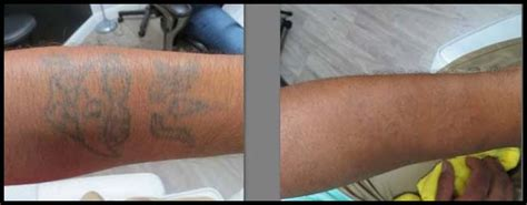 vanish tattoo removal vanish spa the best laser removal
