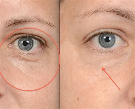 coverage for fine line on forehead donna fibrant katz chase life extension foundation