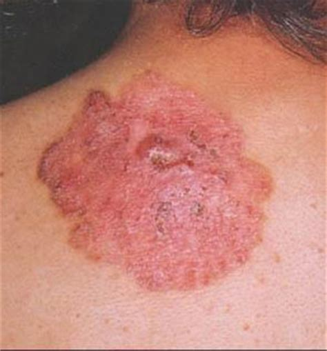 About My Skin Cancer by Cancer Welcome To My Site