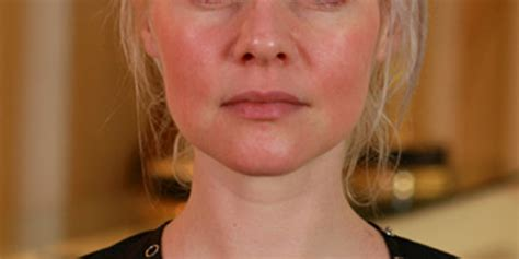 best makeup for rosacea sufferers what people with rosacea need to know about concealing