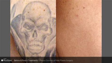 tattoo removal wilmington nc laser removal before and after carolina