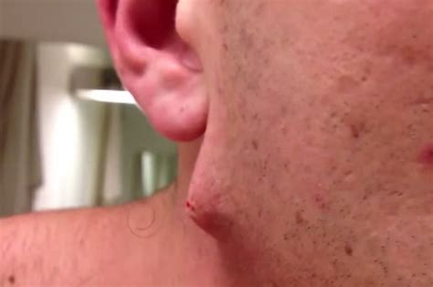ingrown hair has puss this guy has the most insane ingrown hair you ve ever seen
