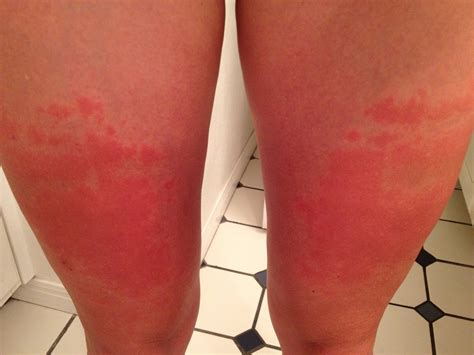 what does it when a is in heat what does heat rash look like what does it look like find out here
