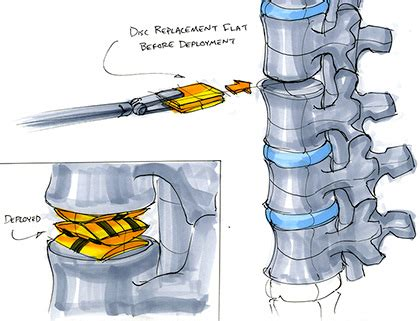 Origami Medicine - origami used to miniaturize improve surgical tools