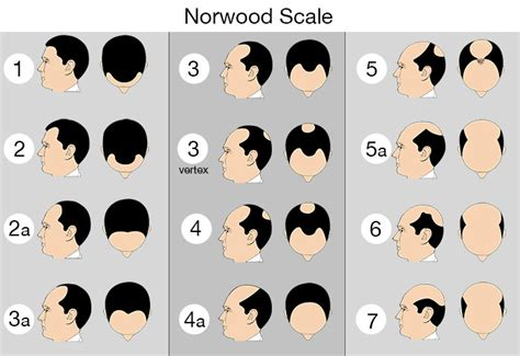 male pattern hair loss scale norwood scale hair loss chart for men with male pattern