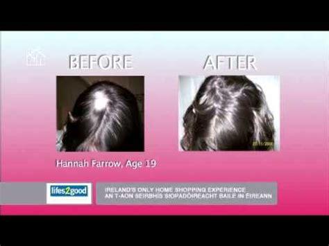 viviscal hair reviews african american natural healthy hair growth from viviscal youtube