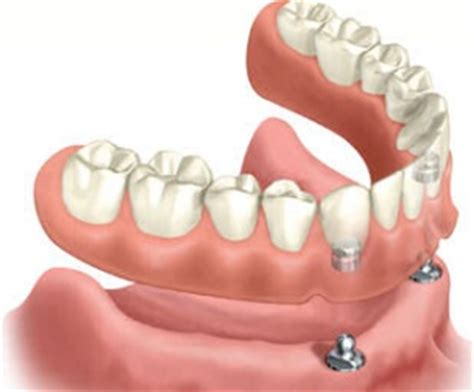 prezzo protesi dentaria mobile protesi dentaria mobile completa trattamenti dentale