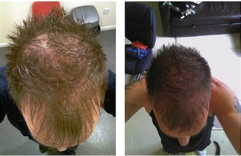 Hair Transplant Shedding by How Fue Hair Transplant Is Done
