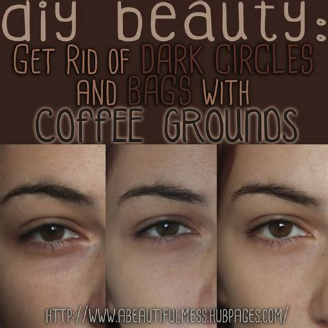 Get Rid Of Eye Bags And Circles Podcast by 1203 Best Images About My Circles Treatment On