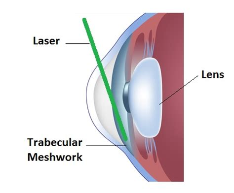glaucoma treatment glaucoma treatments of york laser vision correction york pa
